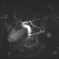 MRCP(胆道膵管撮像法)